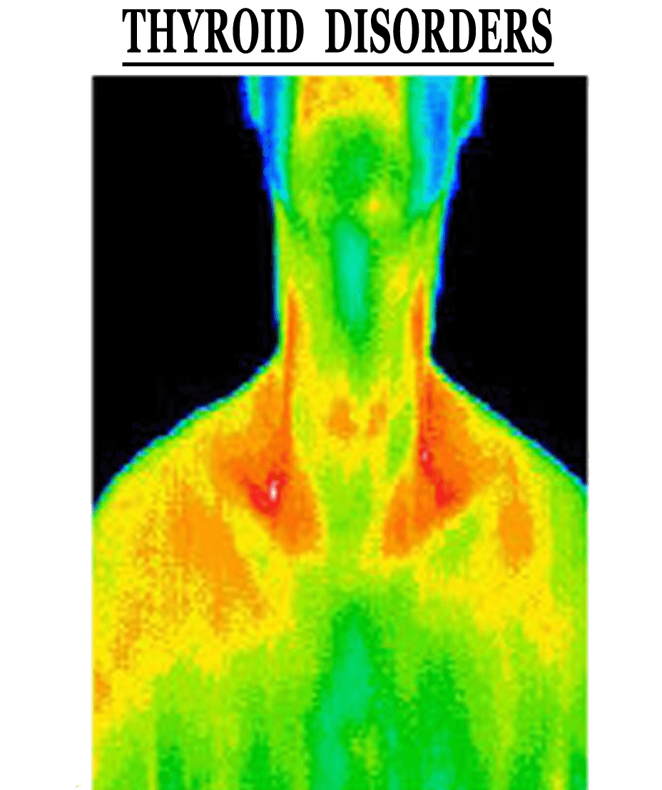 ThermoImages10