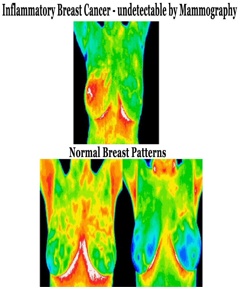 ThermoImages3