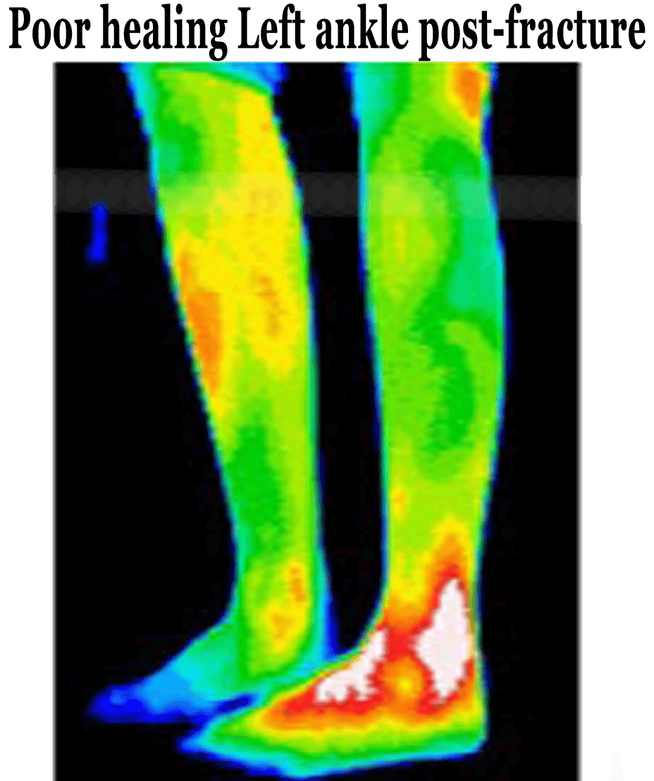 ThermoImages8