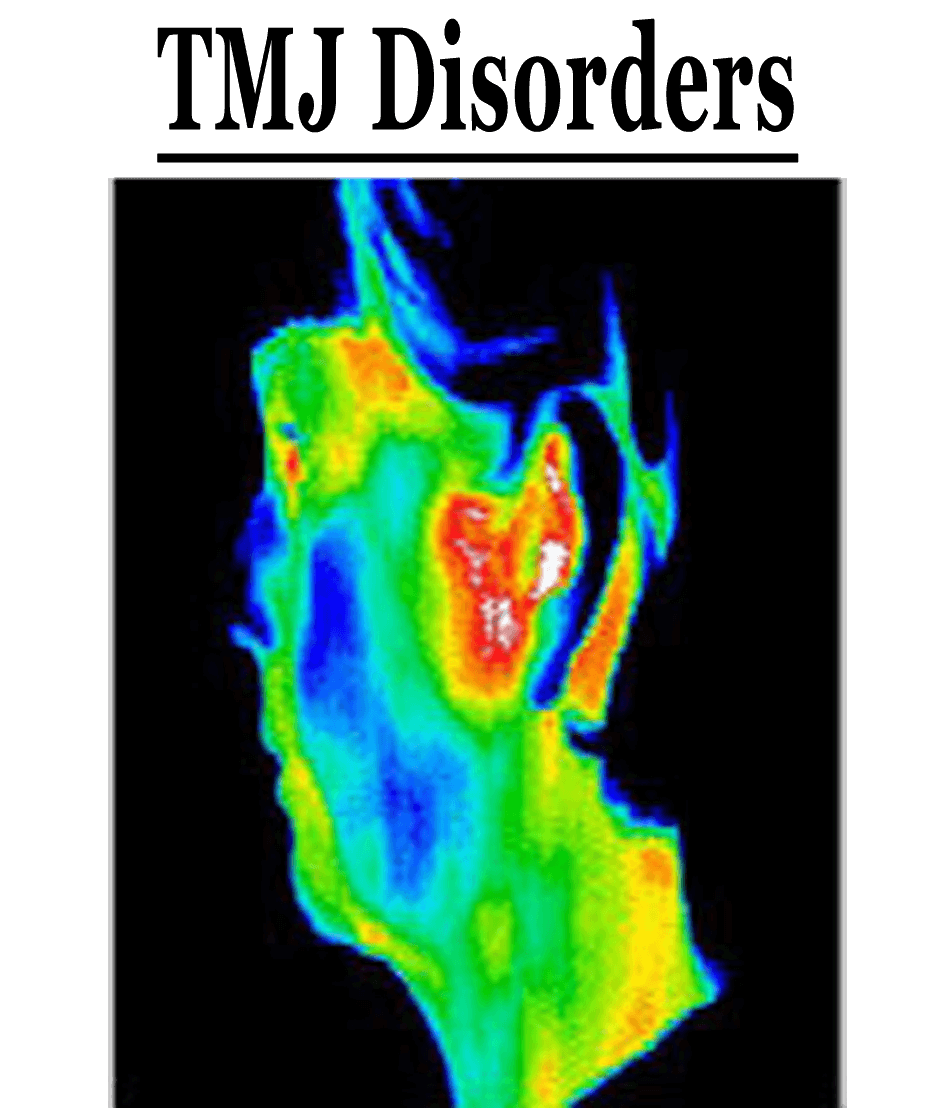 ThermoImages11