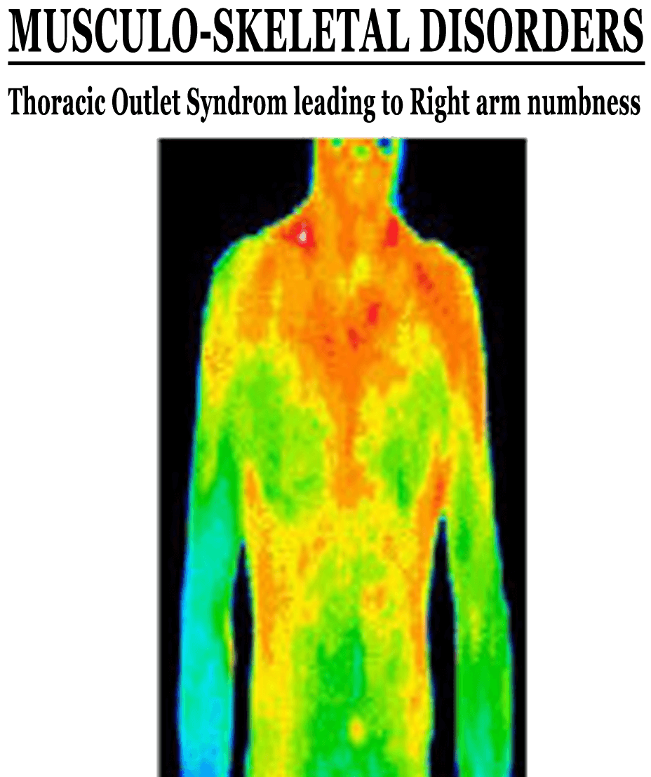 ThermoImages12